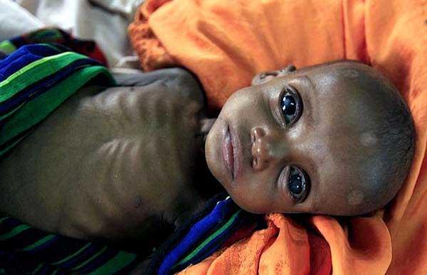 عکسای بسیار نارحت کننده و تکون دهنده از کودکان معصوم سومالی